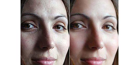 soften-skin-effect